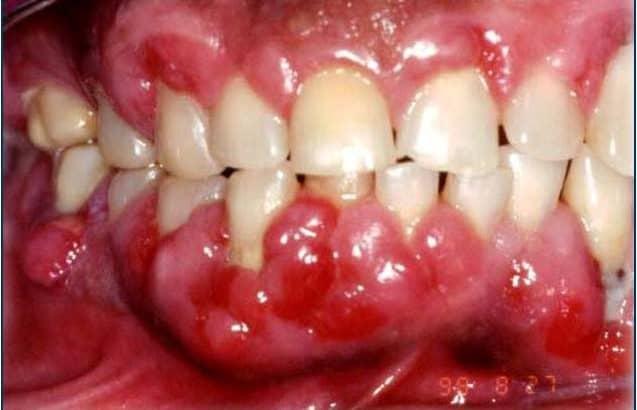 Gingivitis ulcerativa necrotizante