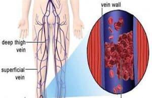 trombo en la pierna
